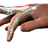 hand_finger_joint_symptoms01a